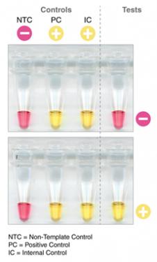 Rapid Colorimetric LAMP assay for SARS-CoV-2 deteksjon
