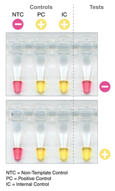 Rapid Colorimetric LAMP assay for SARS-CoV-2 deteksjon
