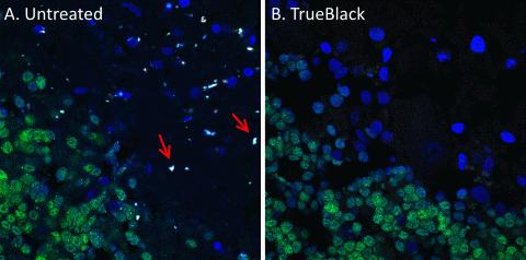 Lipofuscin autofluorescence quencher
