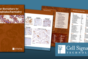 Cancer biomarkers for IHC